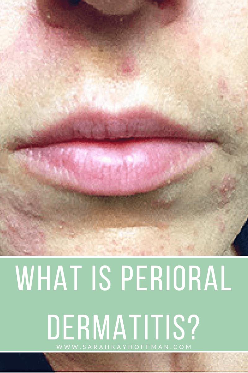 What is Perioral Dermatitis www.sarahkayhoffman.com #perioraldermatitis #skincare #SIBO #gutskin #guthealth