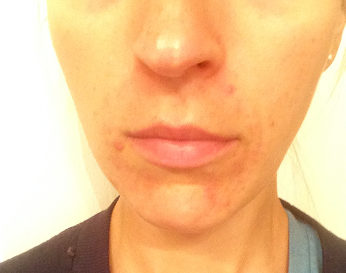 Perioral Dermatitis Update from using Earth Mama Angel Baby Nipple Butter via www.agutsygirl.com Skin