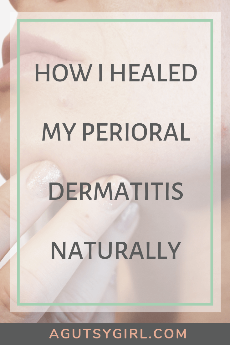 How I Healed My Perioral Dermatitis Naturally agutsygirl.com #perioraldermatitis #naturalremedy #acne