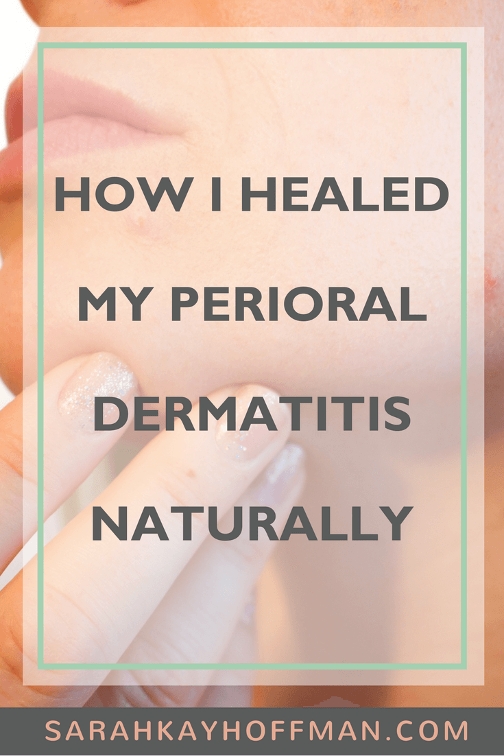 How I Healed My Perioral Dermatitis Naturally www.sarahkayhoffman.com #skincare #acne #dermatitis #healthyliving #betterbeauty
