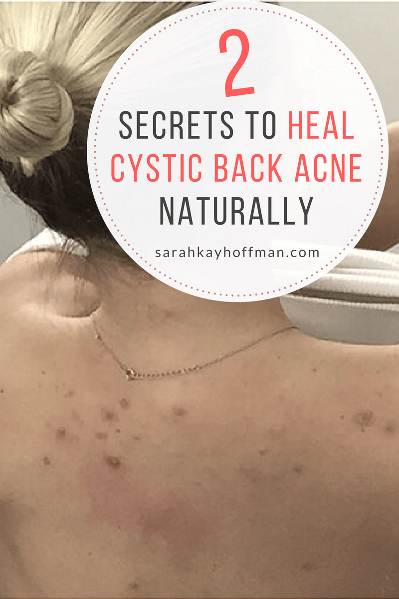 Healing Cystic Back Acne Naturally sarahkayhoffman.com 2 Secrets to Heal Cystic Back Acne Naturally