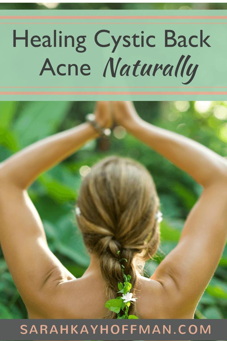 Healing Cystic Back Acne Naturally sarahkayhoffman.com