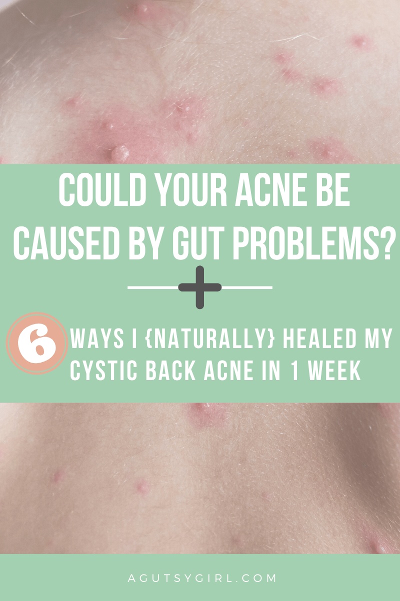 Could Your Acne be Caused By Gut Problems? agutsygirl.com #guthealth #acne #skincare #skin