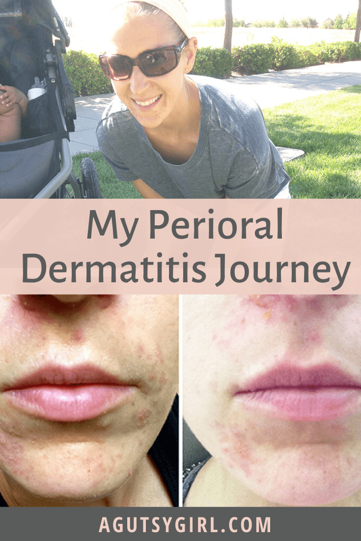 My Perioral Dermatitis Journey agutsygirl.com #acne #skincare #guthealth #perioraldermatitis