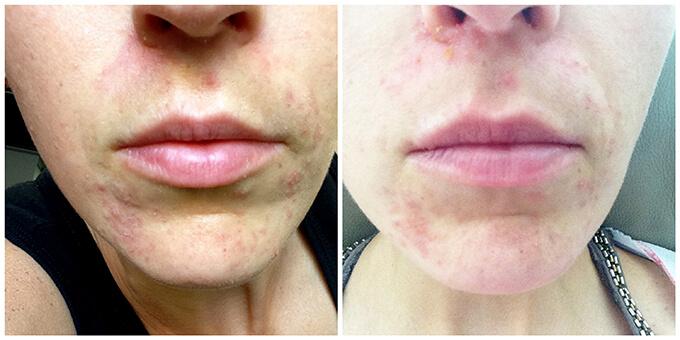 My Perioral Dermatitis Journey www.sarahkayhoffman.com beginning #sibo #perioraldermatitis #skincare #skinhealth