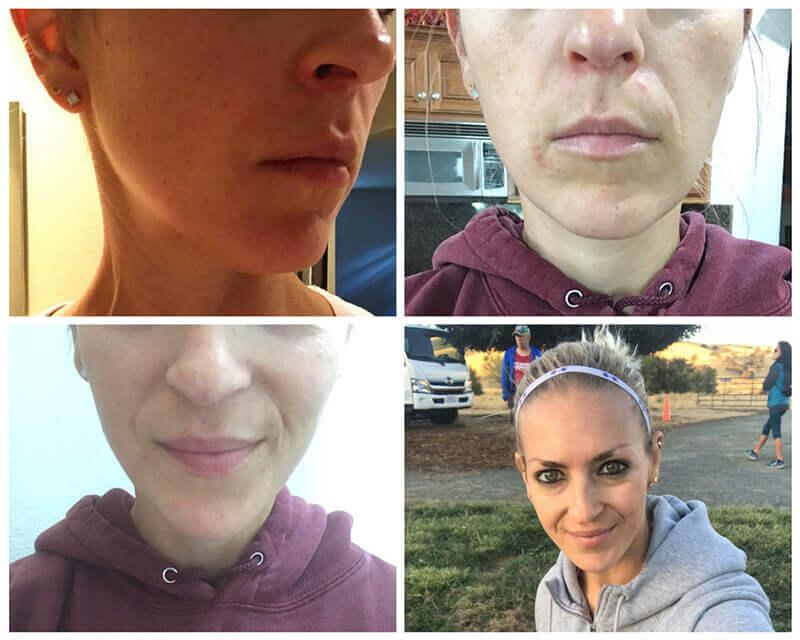 My Perioral Dermatitis Journey www.sarahkayhoffman.com healing in 2017 #sibo #perioraldermatitis #skincare #skinhealth
