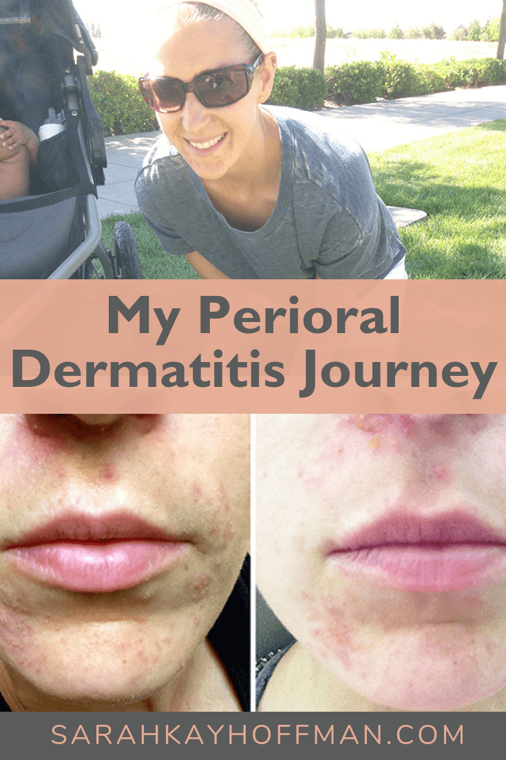 My Perioral Dermatitis Journey www.sarahkayhoffman.com #skincare #healthyliving #perioraldermatitis #acne