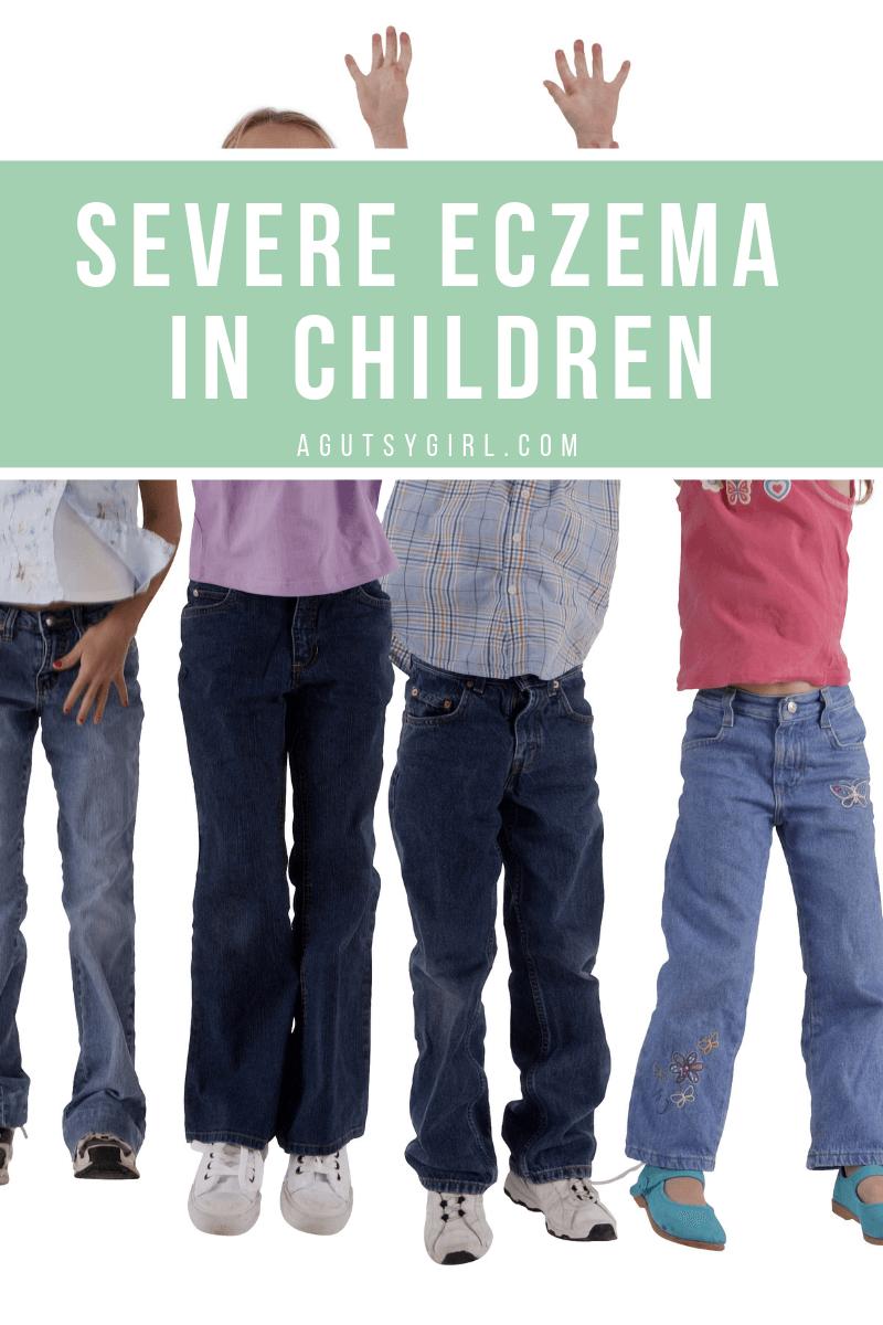Severe Eczema in Children agutsygirl.com #eczema #acne #guthealth
