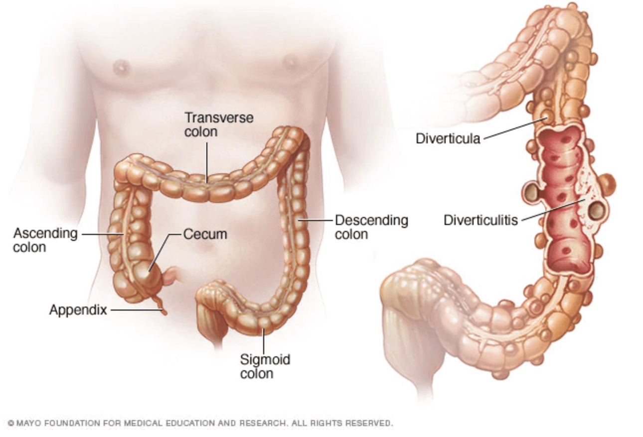 What is Diverticulitis agutsygirl.com Mayo Clinic image diverticula #diverticulitis #guthealth #gut