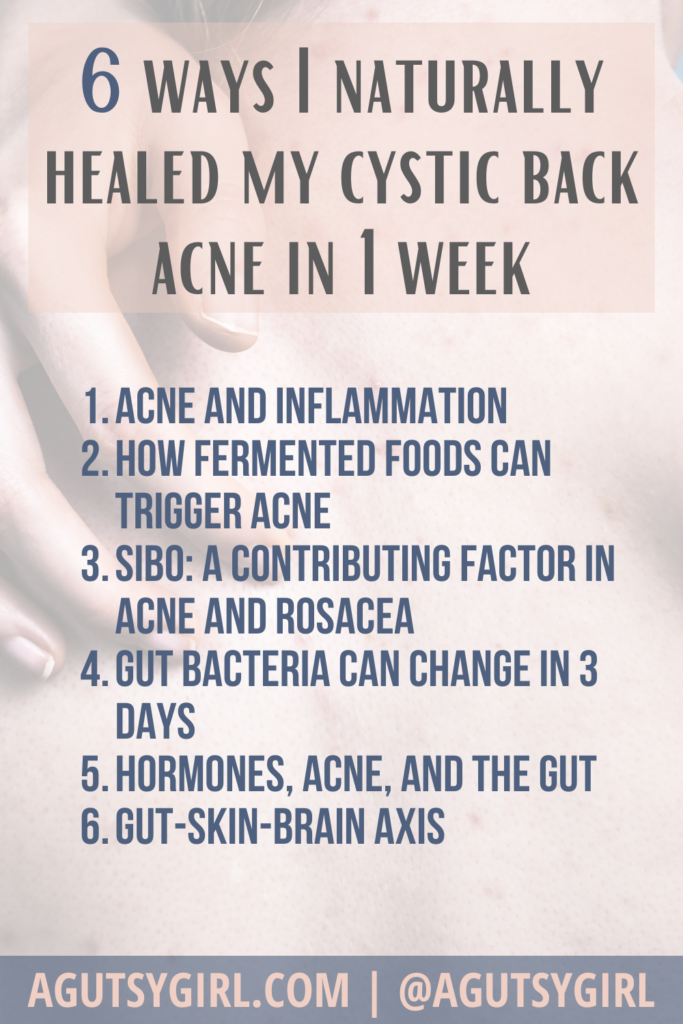 Could Your Acne Be Caused by Gut Problems agutsygirl.com #gut #acne #skin cystic back acne